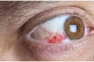 眼底出血的高危人群有哪些——合肥爱尔眼科