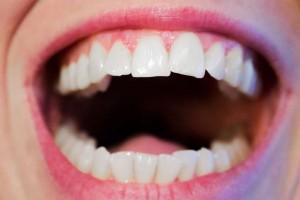带牙套的时候怀孕了戴牙套时需要注意什么